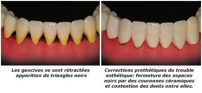 maladies parodontales cabinet dentaire moullec fr d ric. Black Bedroom Furniture Sets. Home Design Ideas